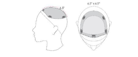top form haarstuk uitleg